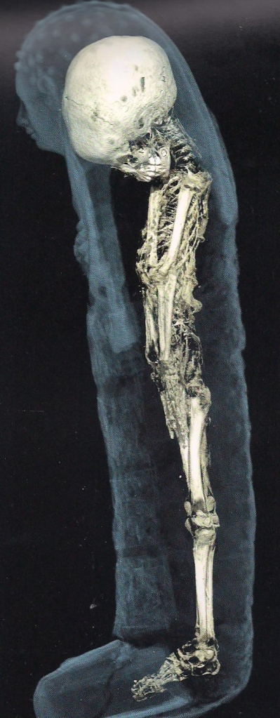 Mummy skeleton